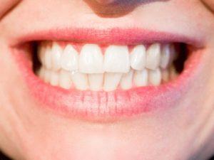 Pediatric Dentist in 20003